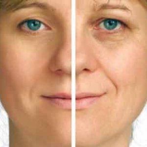 Anti-edad y arrugas